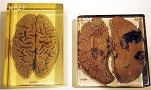 cervello Einstein-300X180