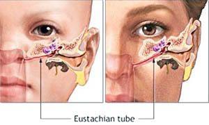 tromba di Eustachi-300x180