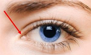 Caruncola lacrimale 300x180