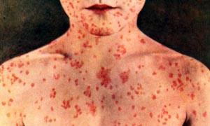 5 Virus famosi e temuti-Morbillo-300x180