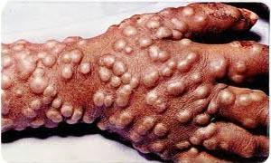 5 Virus famosi e temuti-Vaiolo-300x180