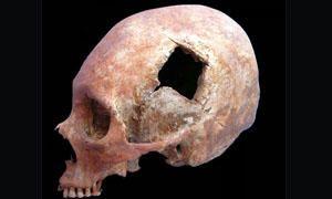 Cultura Incas-medicina degli Incas-300x180