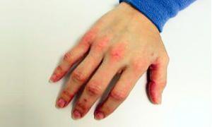 Dermatosi con essudato-300x180