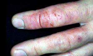 Dermatosi fissurate-300x180