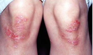 Dermatosi squamose-300x180