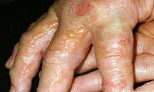 Dermatosi vescicolare-300x180