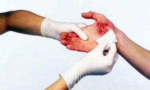 Le ferite-300x180