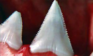 Denti-300x180