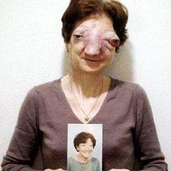 Il caso di Chantal Sébire-250x250