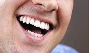 No al cancro della bocca-300x180