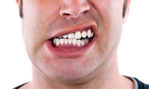 Agisci al primo segnale se hai cambiamenti nella bocca-300x180
