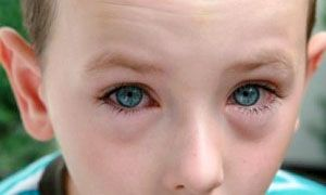 Congiuntivite allergica-300x180
