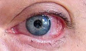 Secchezza oculare.300x180