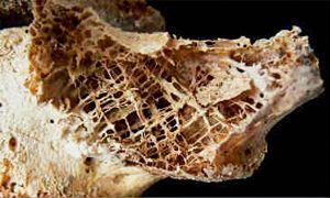 L'esame che rileva la perdita di massa ossea-300x180