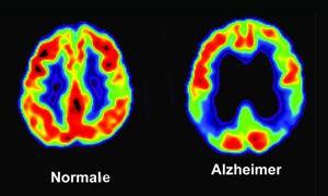 Gli screening per l'Alzheimer-300x180