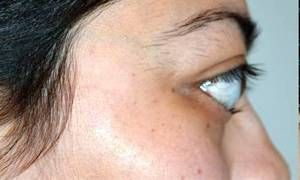 Occhi sporgenti-300x180