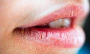 Tagli agli angoli della bocca-300x180
