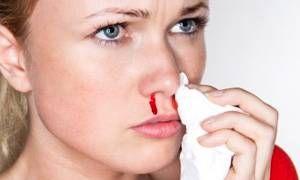 Sangue dal naso-300x180