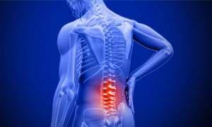 Il mal di schiena-300x180