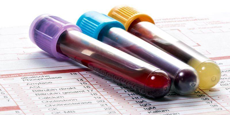 Come si leggono gli esami del sangue1-800x400