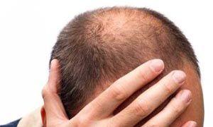 I superpoteri dei capelli-300x180