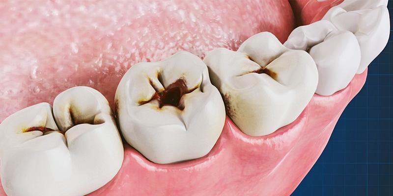 igiene-orale-8-800x400