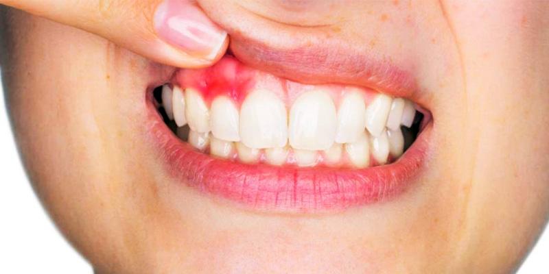 igiene-orale-9-800x400