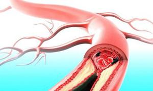 attacco-cuore-2-300x180