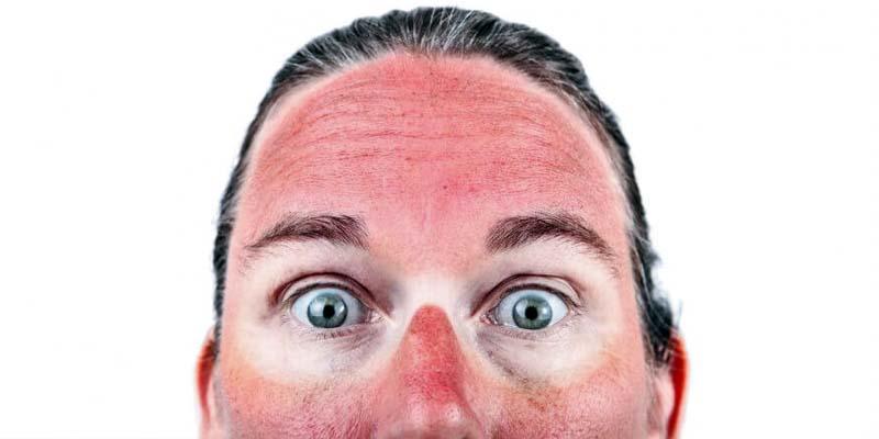 Prendere il sole in sicurezza5-800x400