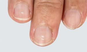 Le macchie bianche sulle unghie-300x180