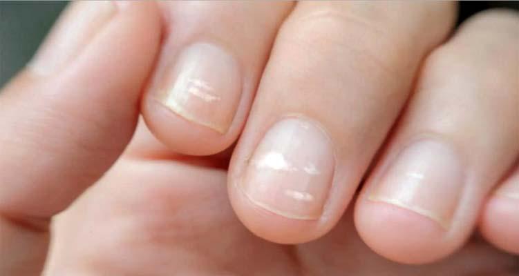 unghie con macchie bianche
