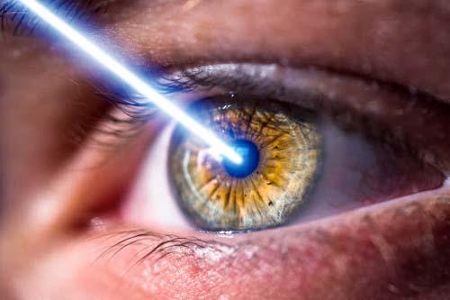 intervanto laser