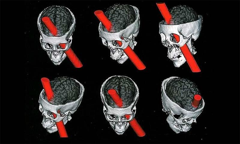 si può vivere con mezzo cervello-10-800x400