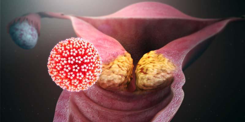 Papillomavirus-2-800x400
