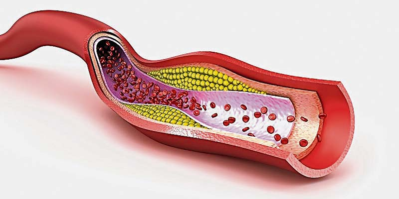 Ipercolesterolemia-800x400