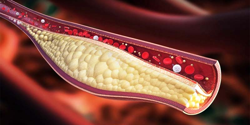 colesterolo-2-800x400