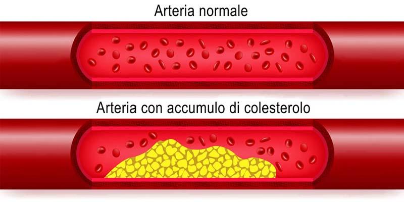 colesterolo-3-800x400