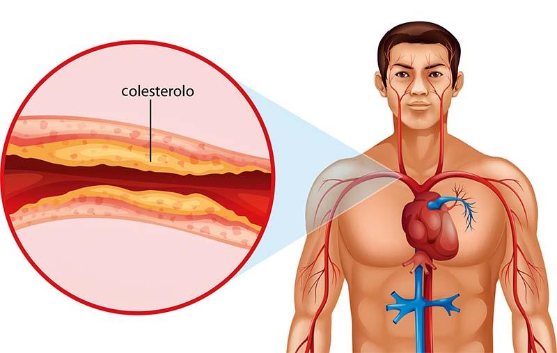 colesterolo-5-800x400
