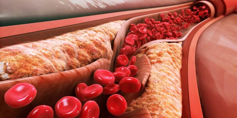 colesterolo-6-800x400
